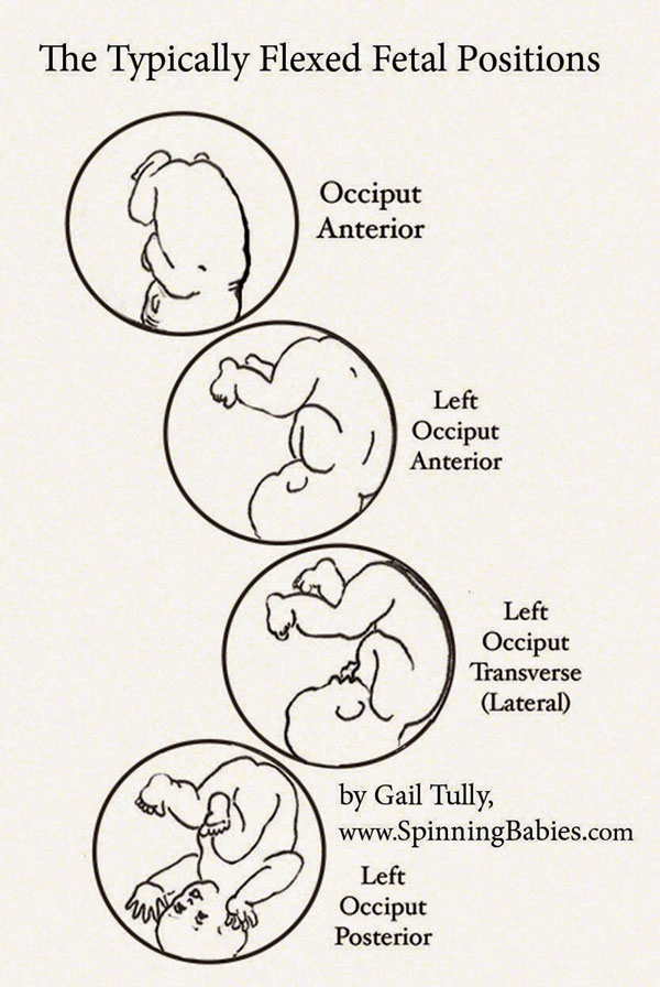 The Typically Flexed Fetal Positions