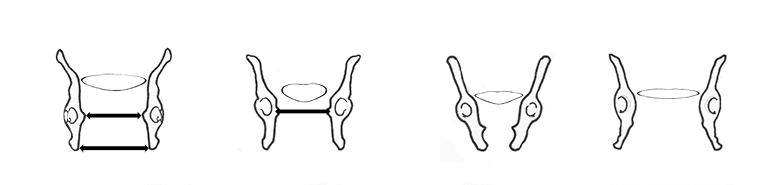four pelvic cavities
