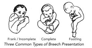 Some of the breech positions.