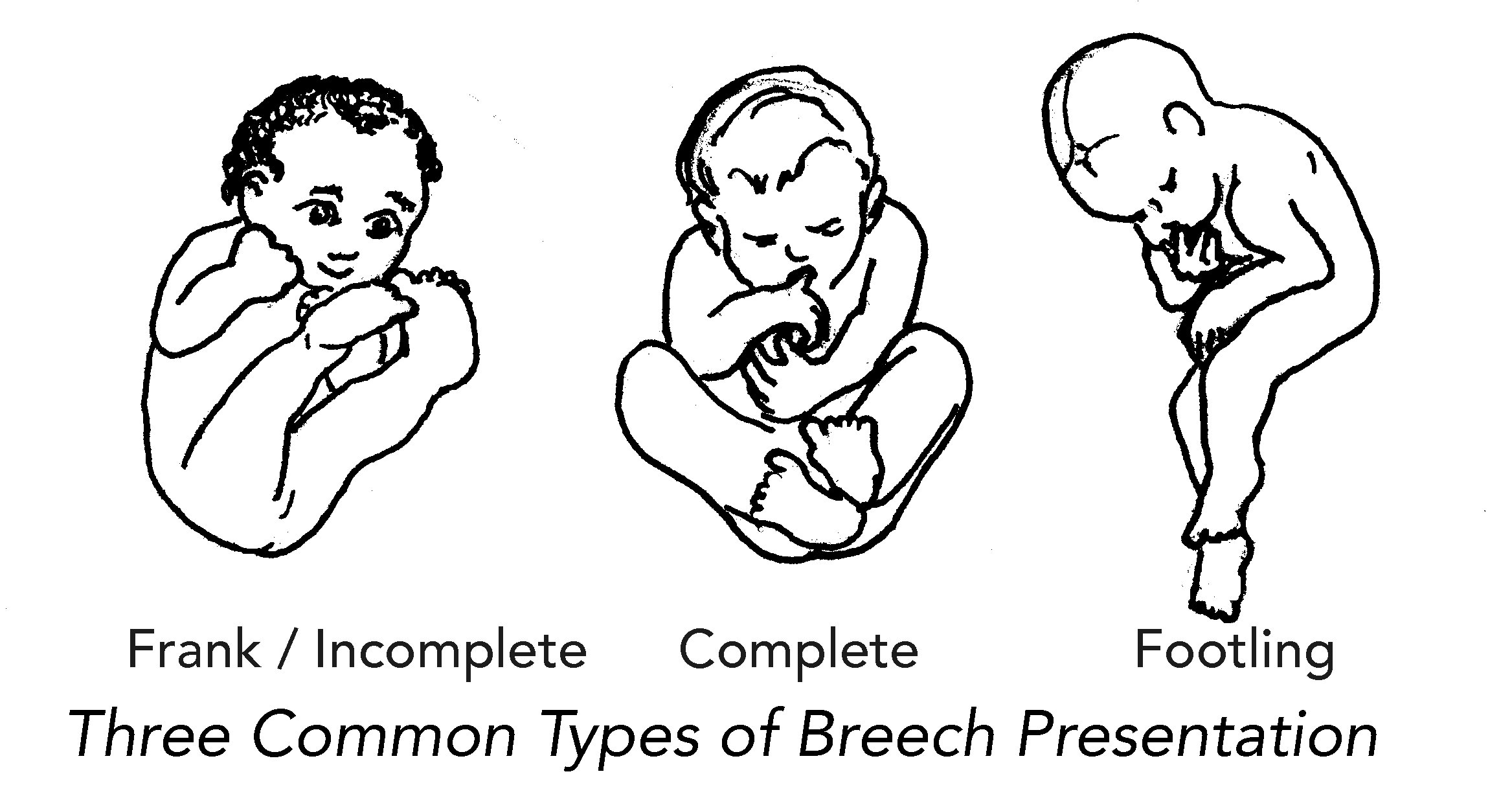 Belly Mapping Breech - Spinning Babies