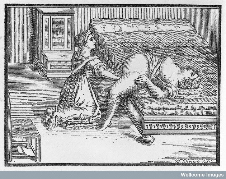 Engleman reported on Midwifery use of this open brim position in 1882. Dr. Walcher then wrote about it and it's been known by his name ever since.