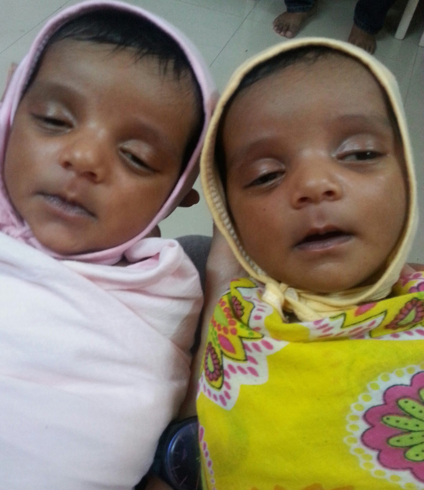 Faruks Twins in Mumbai.1st flipped at 40 weeks