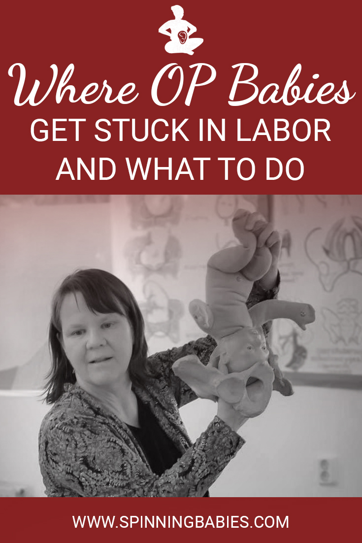 Where OP Babies Get Stuck in Labor and What to Do