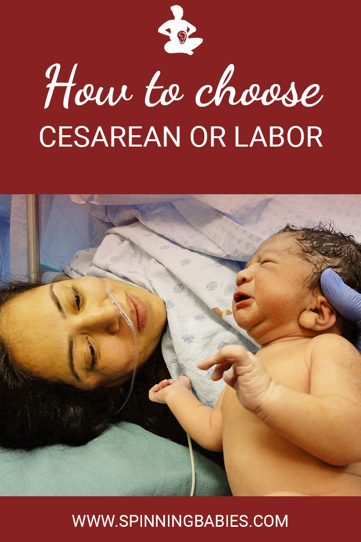 How to choose cesarean or labor