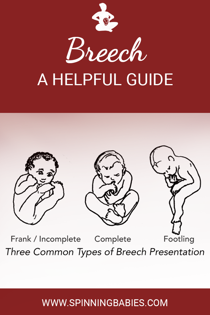 Breech Baby - a helpful guide! Learn the four basic breech types, when breech may be an issue and when is it fine, common issues with breech, reasons for breech and more! #Breech #Childbirth #Pregnancy