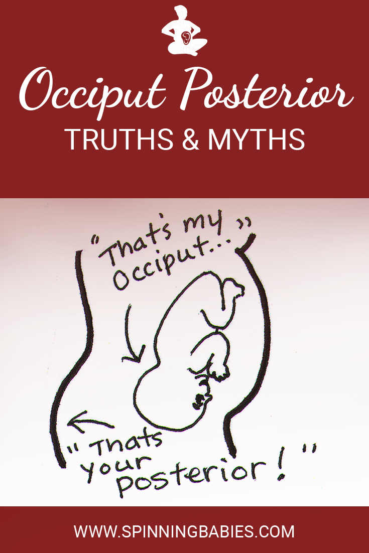 Occiput Posterior (OP) Truths and Myths