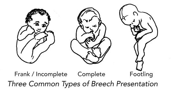 Breech 3 types